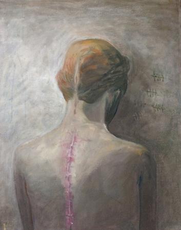 Scar, 2017, oil on canvas, 50 x 40 cm